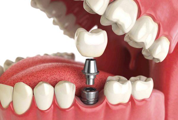 Современные технологии в протезировании зубов