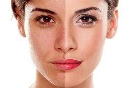 Лазерный пилинг: эффект «бархатной кожи» гарантирован!