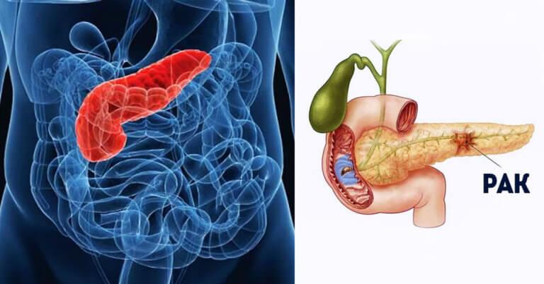 Рак поджелудочной железы, симптомы