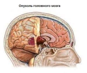 Головная боль при опухоли мозга