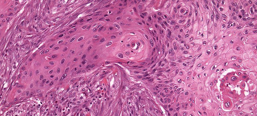 Антиоксиданты могут взаимодействовать со средствами против рака молочной железы