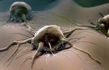 Самая страшная болезнь — онкология?
