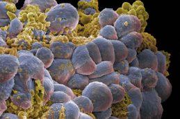 Как не заболеть гепатитом?