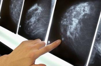 Микрокальцинаты в молочной железе: что это такое, виды, лечение
