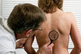 Рак кожи, симптомы, признаки, причины, типы, диагностика