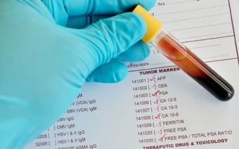 Cкальпель, способный «вынюхивать» рак