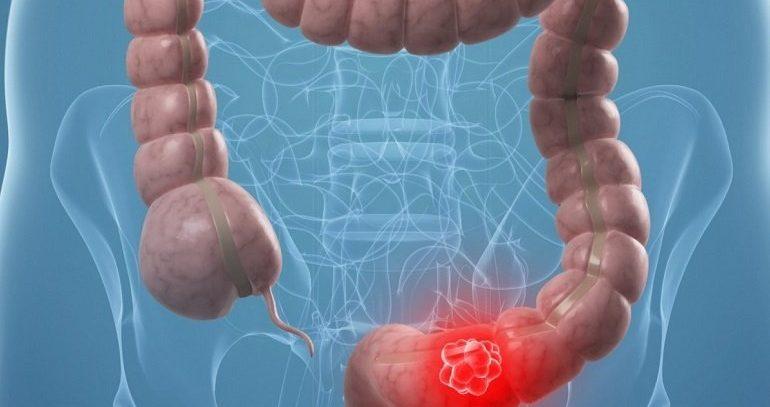 Статистика рака кишечника