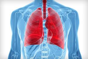Плеврит легких — симптомы воспалительного заболевания