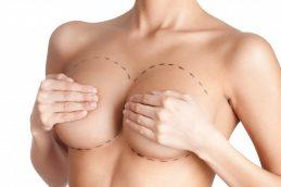 Проверенный хирургический способ — маммопластика после мастэктомии.