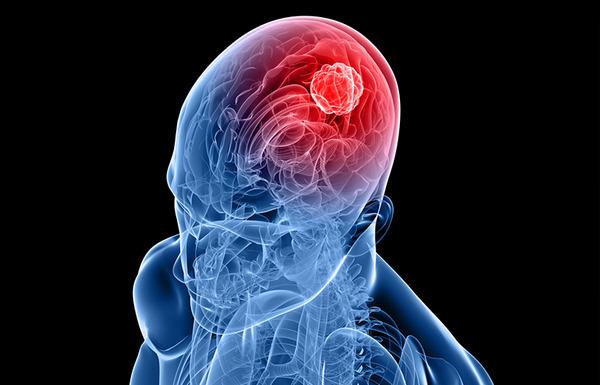Признаки опухоли головного мозга на ранней стадии