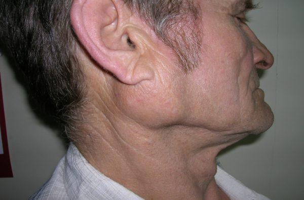 Невринома слухового нерва. Как выбрать способ лечения?