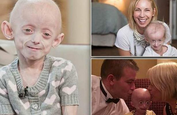 Лекарство от рака продлит жизнь детей с прогерией
