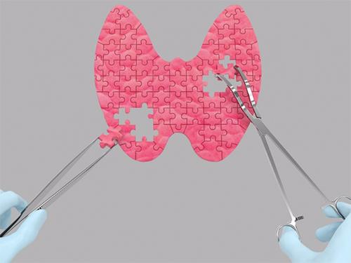 Простой тест: как работает щитовидная железа