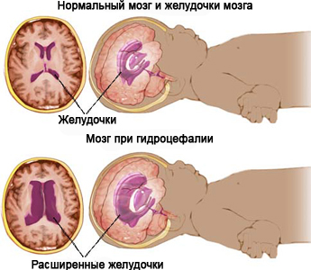 Гидроцефалия — причины, симптомы, диагностика, лечение