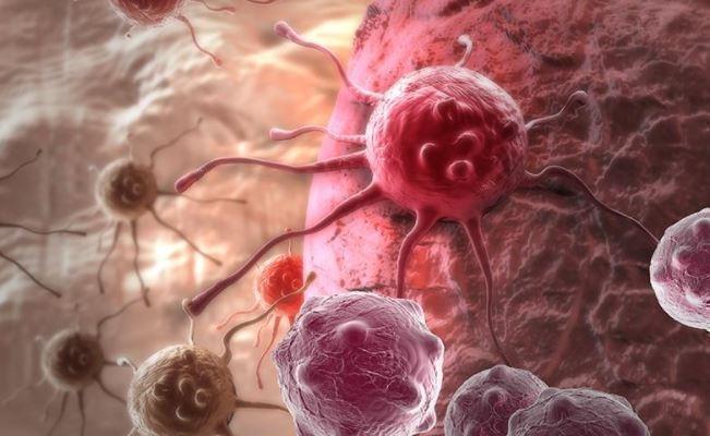 Ученые создали технологию выявления онкологии на ранней стадии