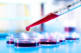 Анализ крови на онкомаркеры: здоровье женщины