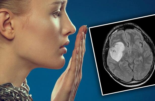 Запах изо рта расскажет, больны ли вы онкологией