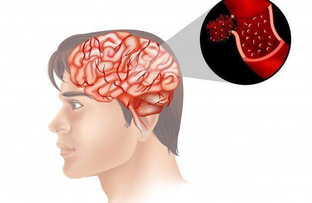 Можно ли вылечить рак мозга?