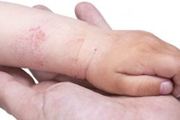Чем опасен рак кожи?