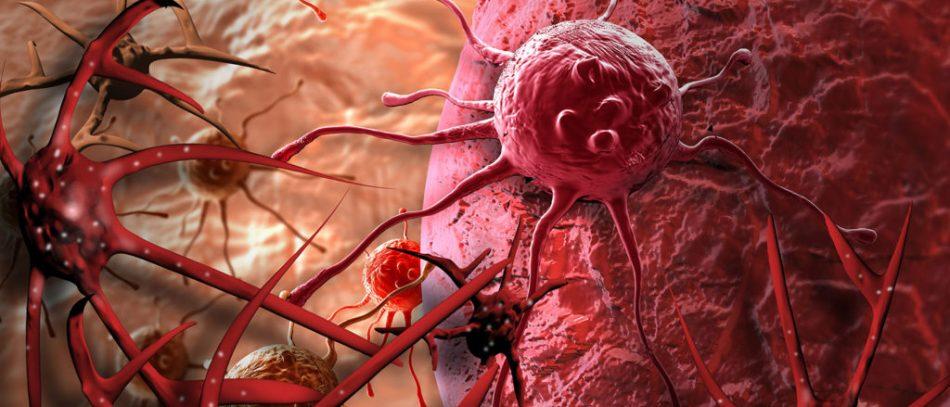 «Неизвестный» рак