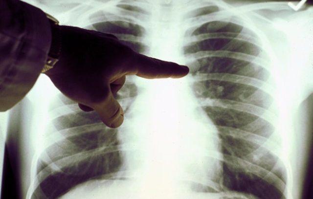 Почему раком легких болеет так много некурящих?