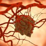 Что такое саркома и в чем ее опасность?