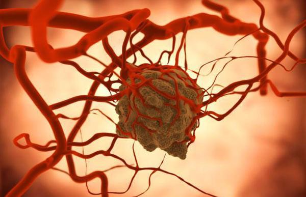 Новый фактор риска рака груди найден