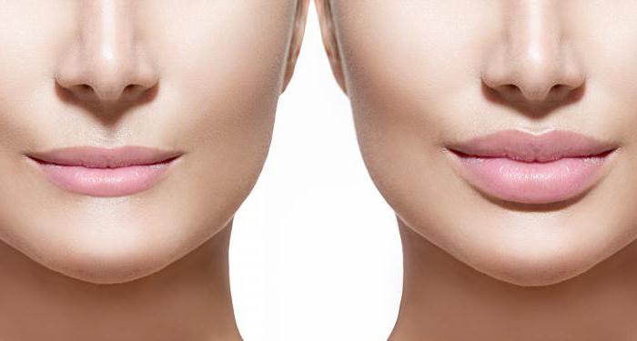 Контурная пластика: новое лицо с помощью гиалуроновой кислоты