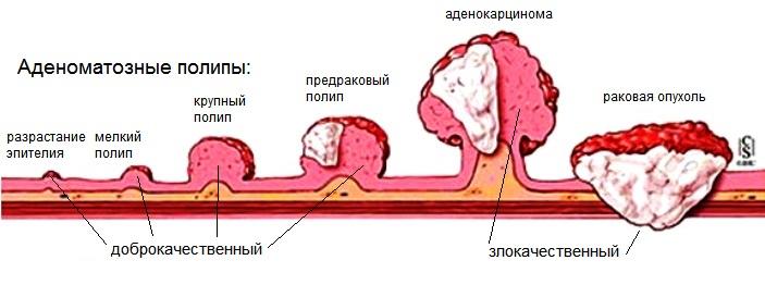 Колоректальный рак или рак толстой и прямой кишки