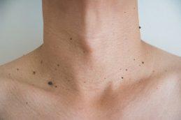 Вирус папилломы у женщины: поражение шейки матки и кожи