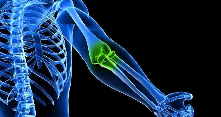 Опухоли костей