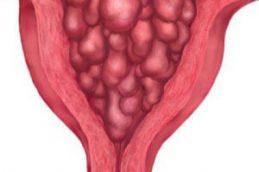 Гиперплазия эндометрия — причины, формы патологии и методы ее лечения