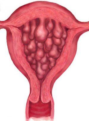 Предраковые заболевания половых органов