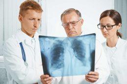 Онкомаркеры рака лёгких