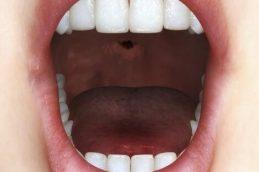 Чем коварна меланома полости рта?