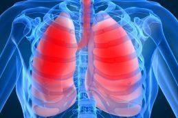 Новый метод обнаруживает рак легких на ранней стадии