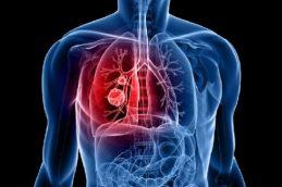 Что нужно знать о раке легкого?