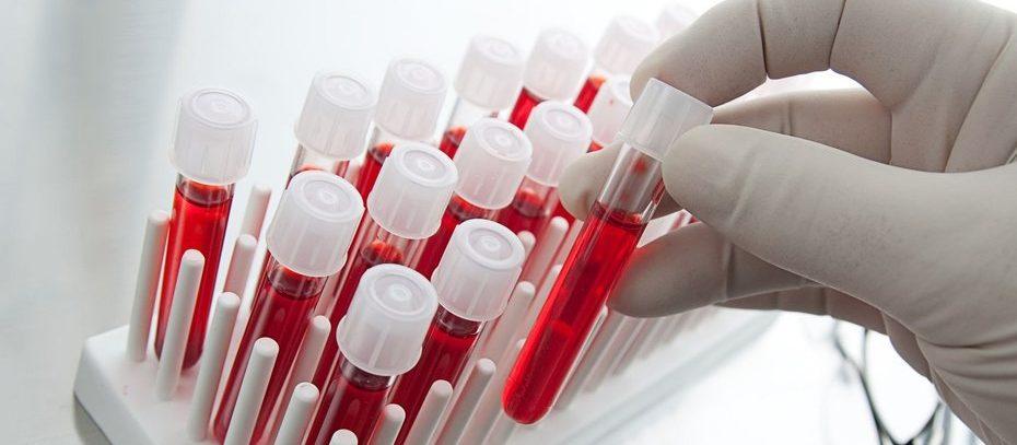 Тихий убийца: признаки скрытого заражения крови, которые важно уметь распознать