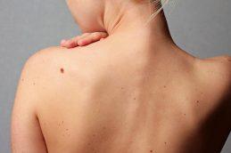 6 важных фактов о раке кожи, которые спасут вам жизнь