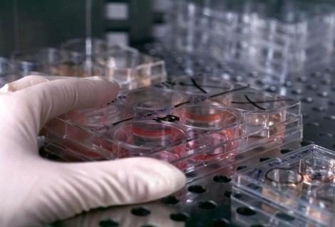 Перспективы лечения стволовыми клетками