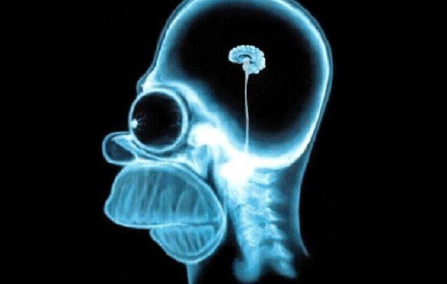 Основные симптомы и признаки при раке головного мозга