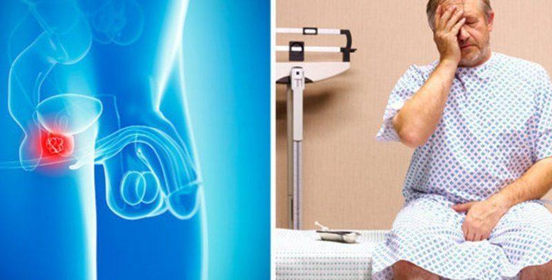 Опухоль простаты можно перехватить в туалете