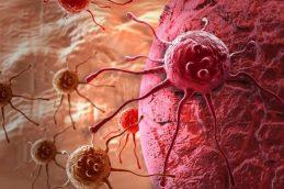 Злокачественные опухоли сердца, рак сердца