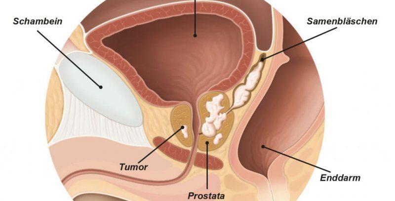 В Германии применен новый метод лечения рака простаты