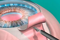 В крымском «ОКО Центре» лечат глаукому