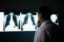 Рак легких. Как снизить риски его развития