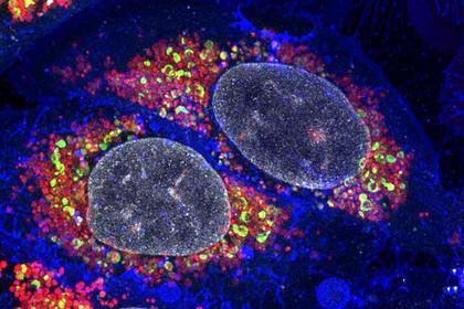 Ученые разрабатывают новые способы лечения глиобластомы
