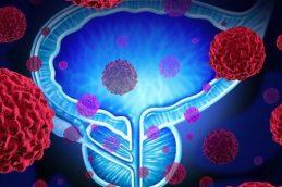 Противораковый белок может способствовать распространению опухолей