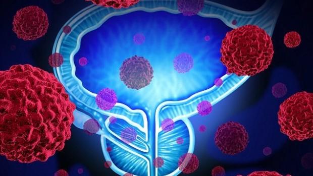 Криохирургия для лечения немеланомного рака кожи и старческого кератоза