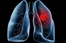 Рак легких: симптоматика и лечение